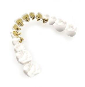 hidden braces front teeth