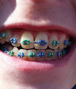 What Braces Colours Should You Wear A Guide To Coloured