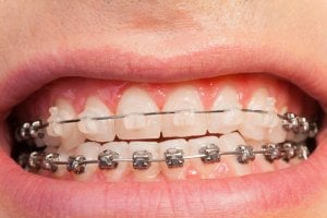 ceramic braces on top metal on bottom