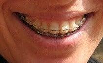braces to match teeth