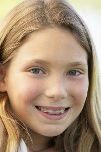 clear braces children