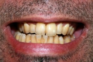 plaque stained teeth