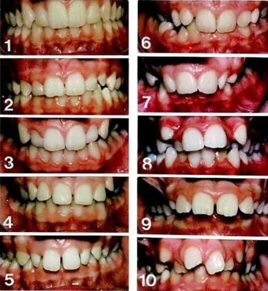 NHS braces eligible