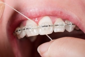 flossing for braces