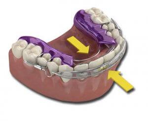 orthodontic spring aligner