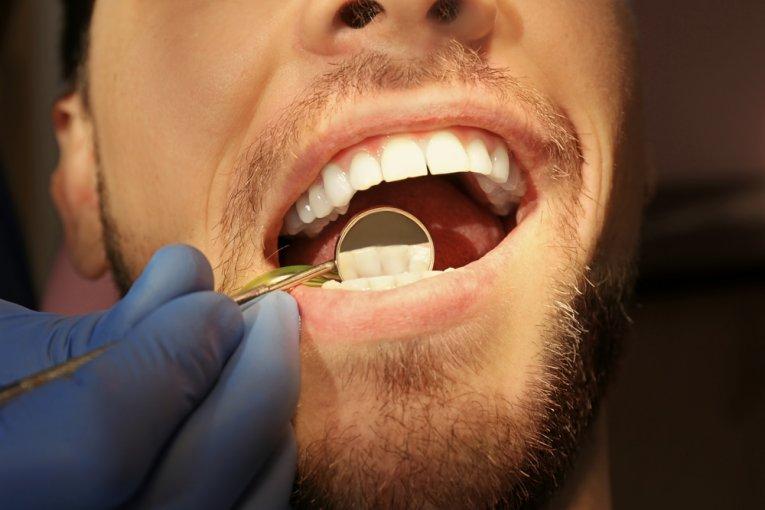keep teeth healthy