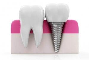 Diagram of dental implants