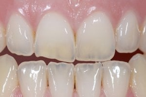 veneers prices Turkey