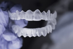 lingual invisible braces