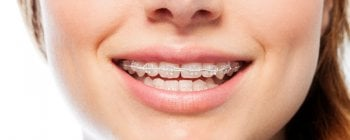 clear ceramic orthodontics