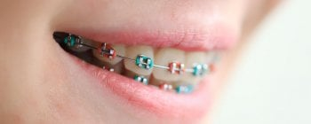 different colour braces