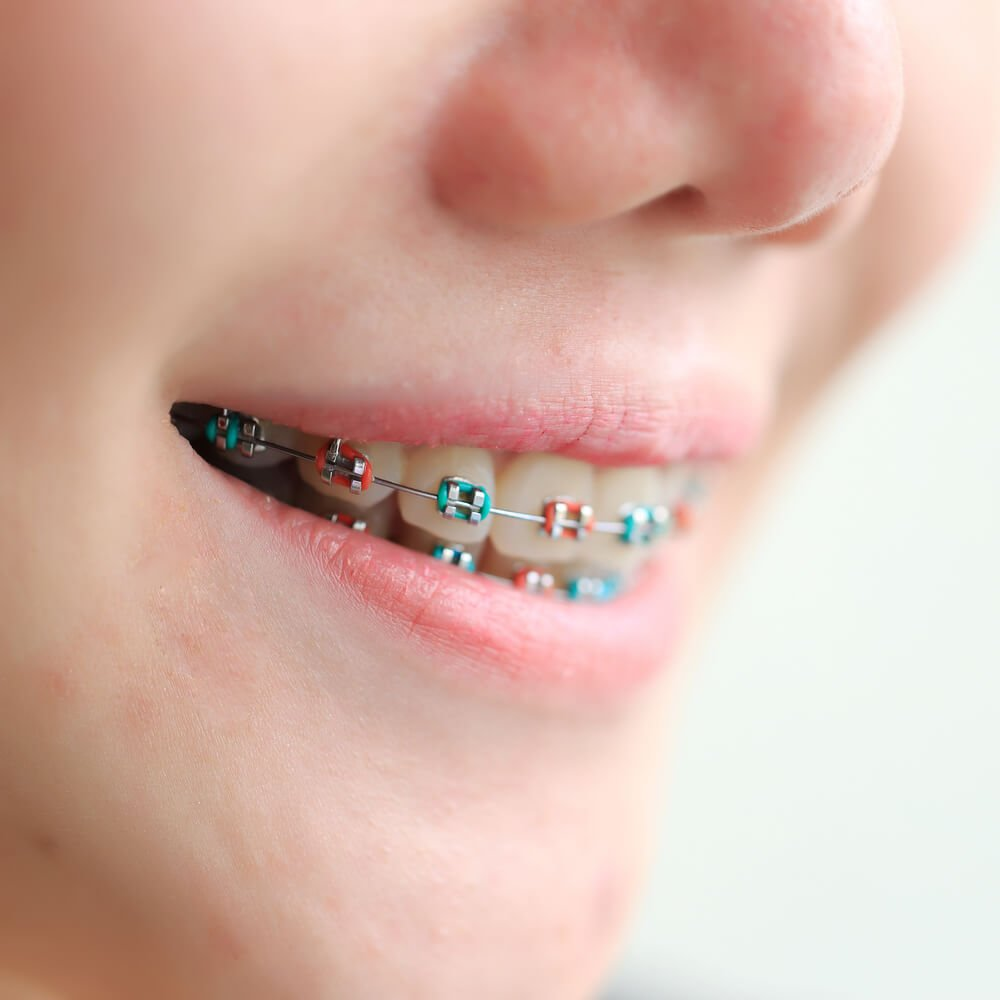Coloured Braces How They Work And How To Choose The Right