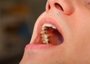braces hidden behind teeth