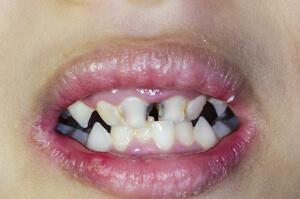 black teeth child