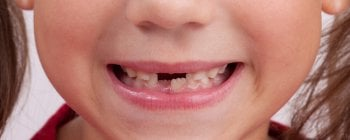 A child with several missing milk teeth