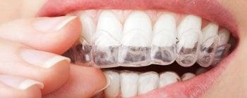 home teeth straightening kit uk