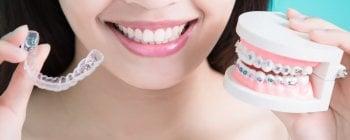braces vs invisalign uk