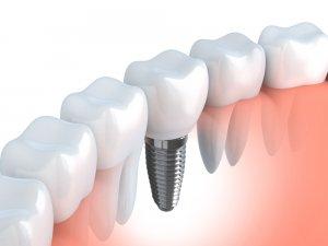 dental implant free