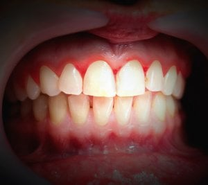 red bleeding gums