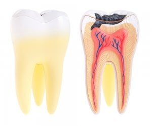pain from tooth decay