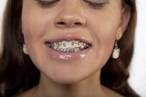 crossbite braces