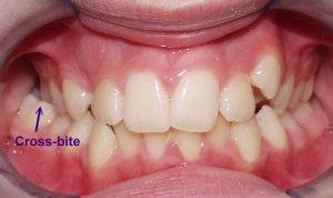 what is a crossbite teeth