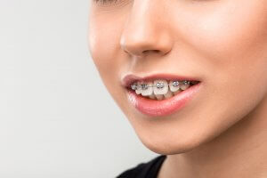 overbite teeth with braces