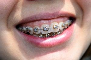 frank smile braces