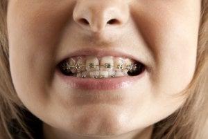 anterior crossbite upper teeth behind lower teeth