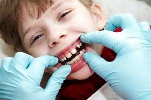 child dental check
