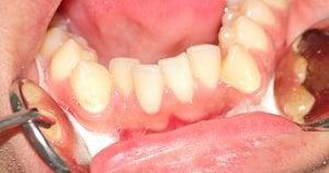 overcrowded lower teeth