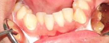 crowded lower teeth