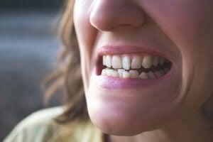crowded top teeth