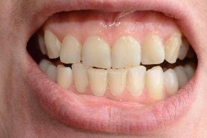 fixing crowded bottom teeth