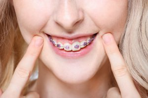 can you straighten teeth without braces