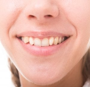 how to straighten teeth