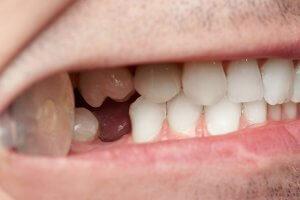 hypodontia permanent teeth