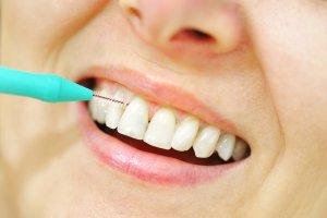 interdental between teeth brush