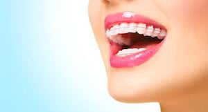 What are Damon braces?