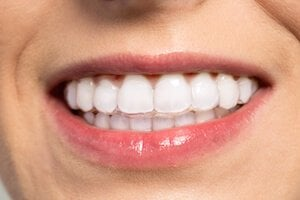 clear aligners uk