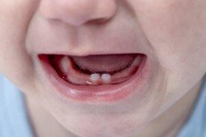 gap between first baby teeth
