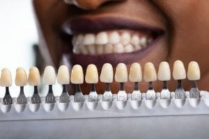 iwhite instant teeth whitening results