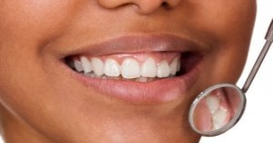 are crest whitening strips safe