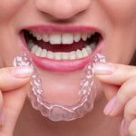 21086Invisalign Reviews: UK Patients Share Their Invisible Braces Reality