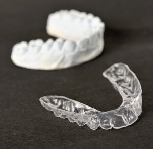 smile direct club reviews aligners