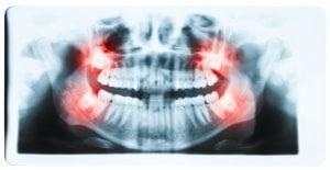 wisdom teeth dry socket