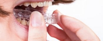 Removable retainers are easy to use