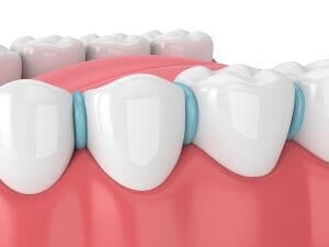 rubber dental spacers for braces