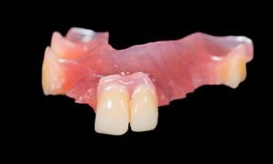 acrylic partial denture front teeth