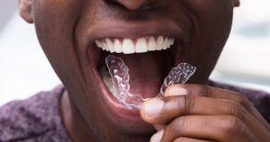 cost of lingual braces vs invisalign